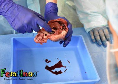Heart Surgery 13-7-19 - 0199